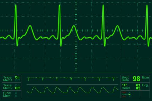 uno-scienziato-usa-predice-rischio-infarto-con-elettrocardiogramma604088899634665423.png